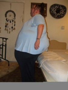 300 lb weight loss